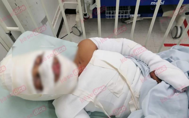Buscan ayuda para niño en el HUS con graves quemaduras